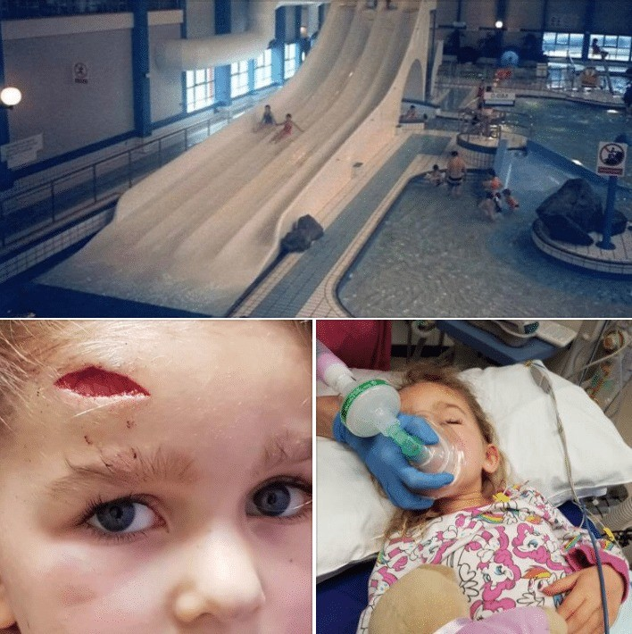 family holiday at butlin turns into a real life nightmare as child is rushed to hospital with head injury