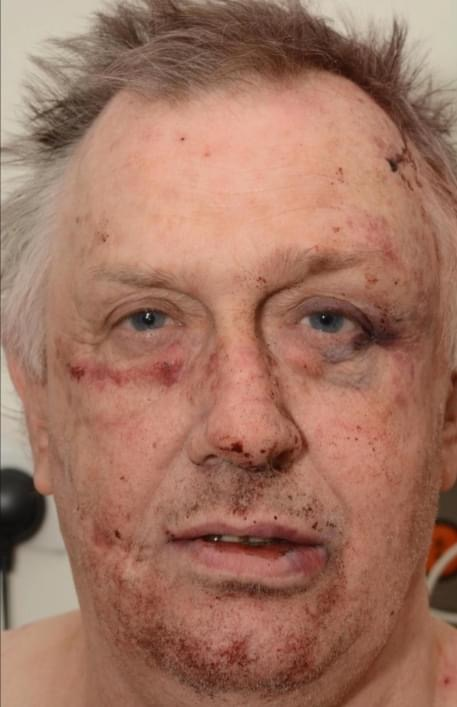 Evil child killer Roy Whiting feared he would be killed after being brutally attacked in prison with makeshift blades